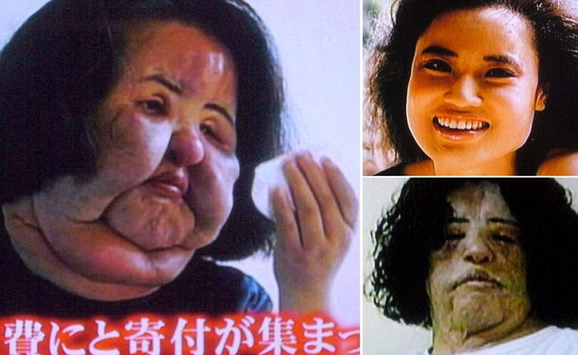 Plastic Surgery Gone Wrong Frankie S Blog